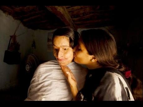 林さんの作品「パキスタン 顔に硫酸を掛けられた女性」