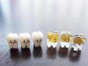 小樽・大正硝子のガラスの「歯」、話題に-金歯や歯磨きグッズも
