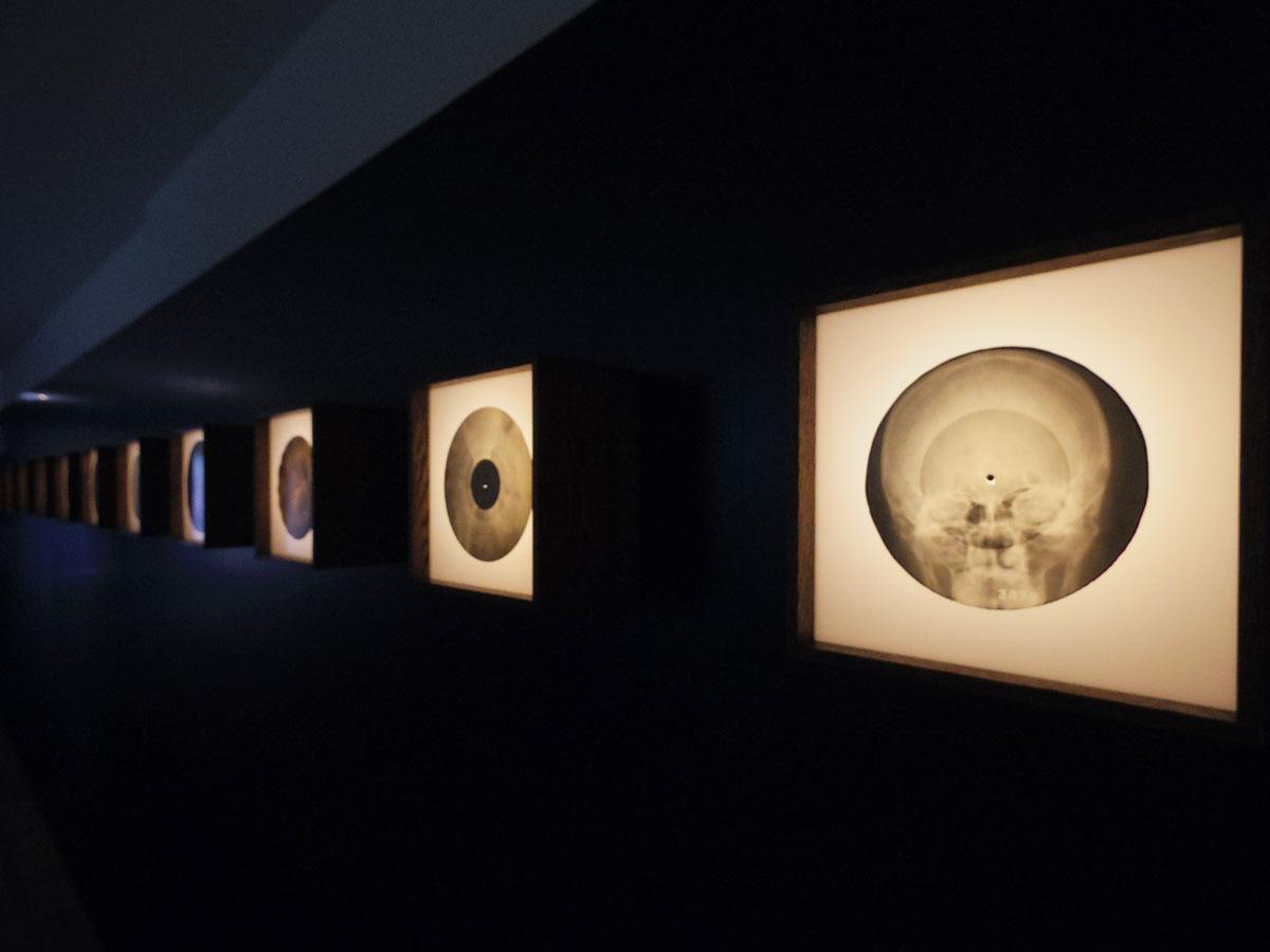 レントゲン写真に音楽を録音した「ボーン・レコード」が並ぶ。骨格などがはっきり写っているものもある